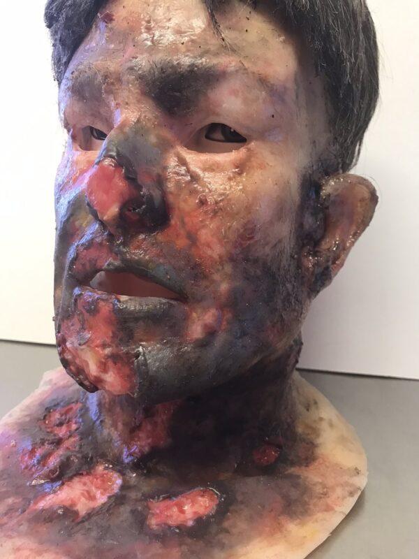 Ofiara poparzenia MB810